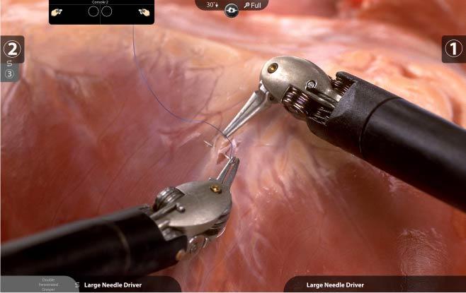 3Dカメラで体内を立体的に映し
