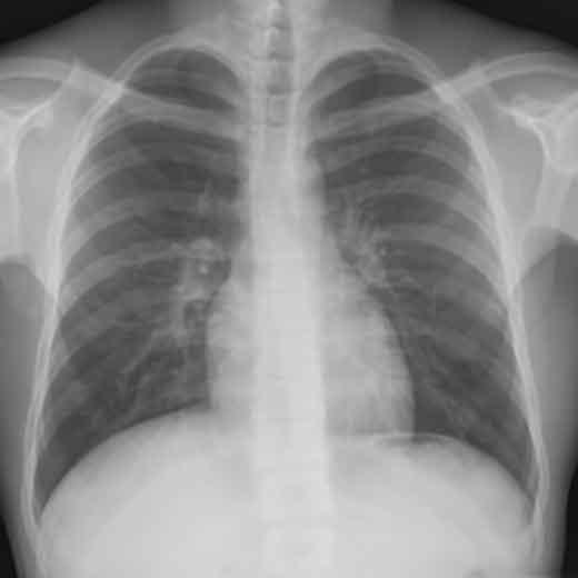 胸部レントゲン(X線)撮影