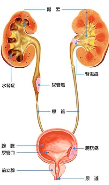 腎盂がん・尿管がんの場所について