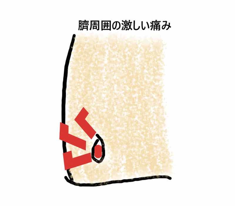 臍から膿が出る