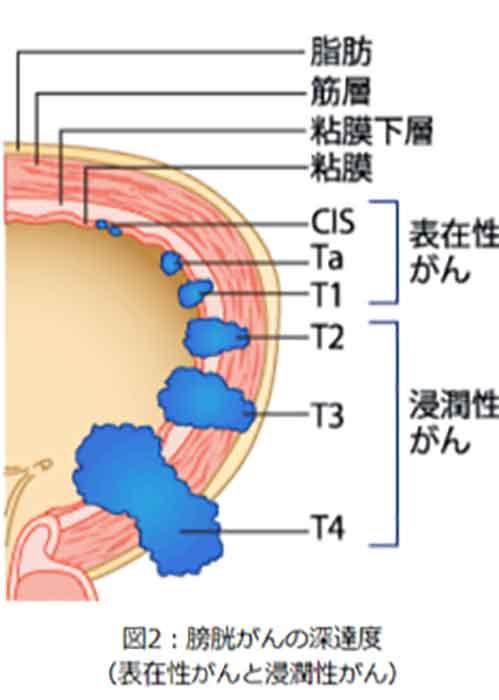 図2:膀胱がんの深達度