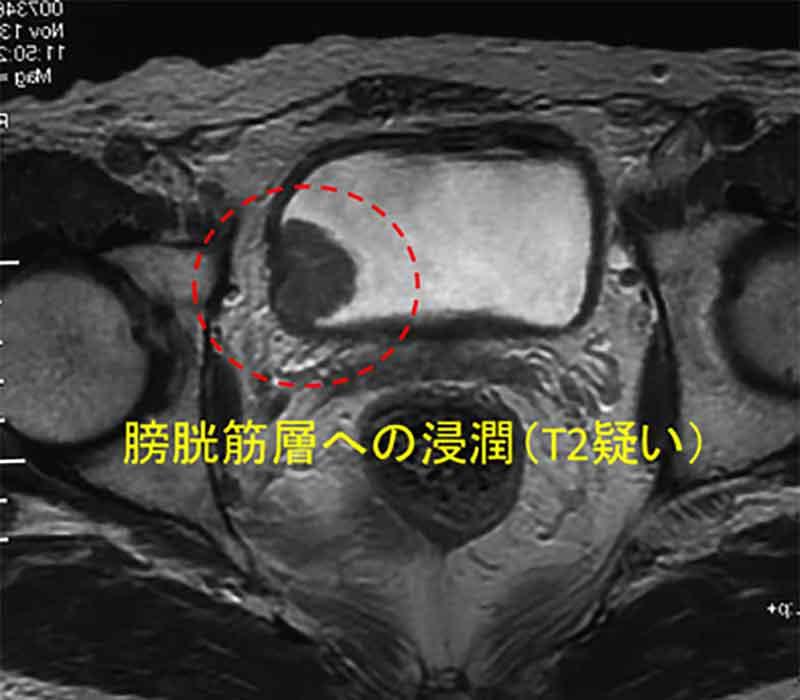 MRI検査膀胱筋層まで浸潤(T2)画像