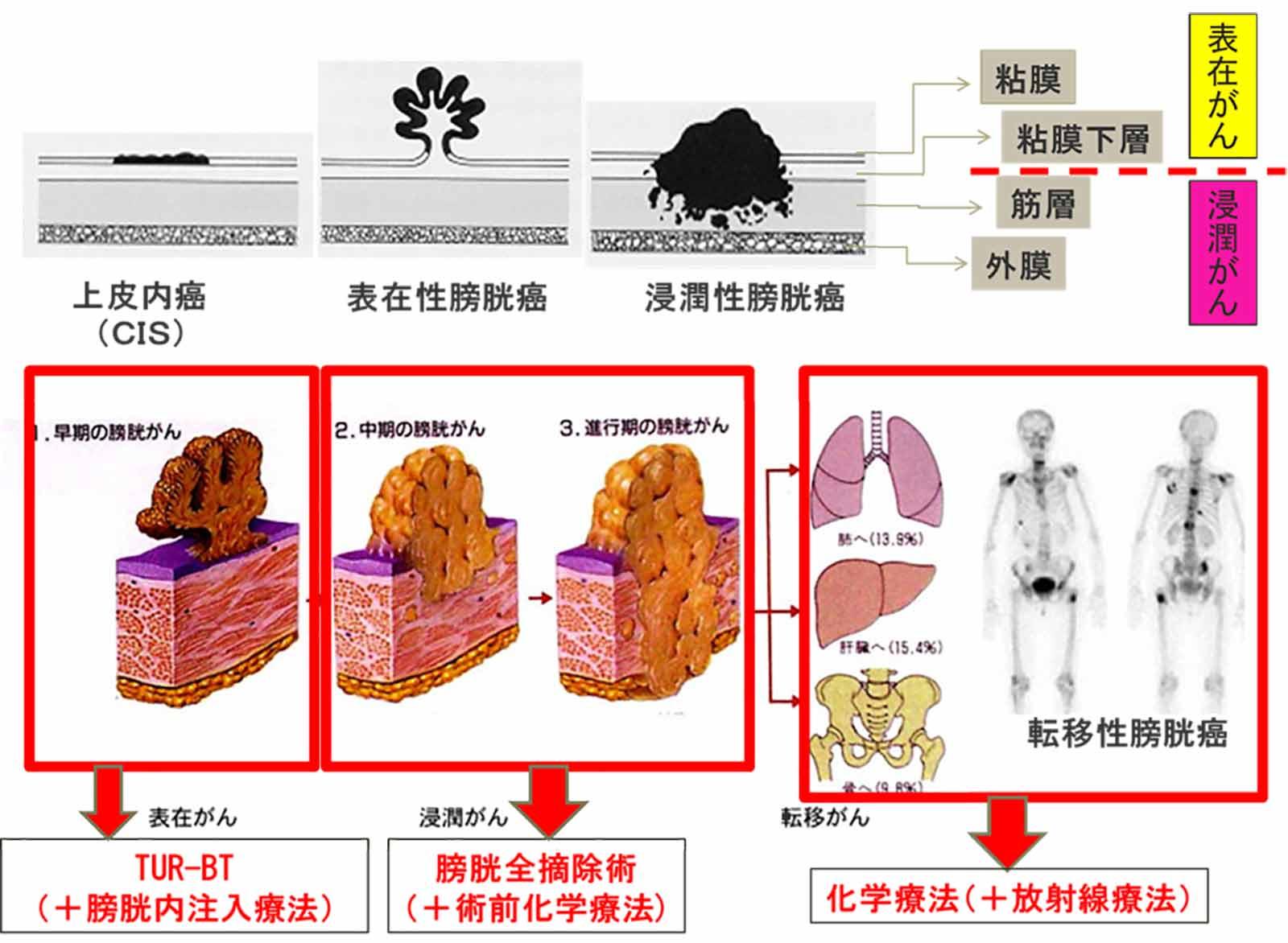 膀胱がんの深達度(病巣の深さ)による治療方法