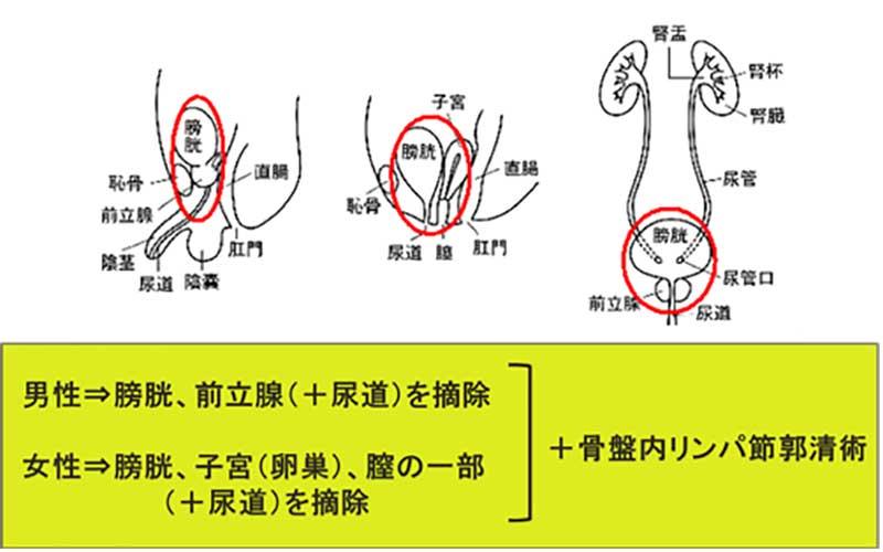 膀胱尿道全摘除術男女の違い