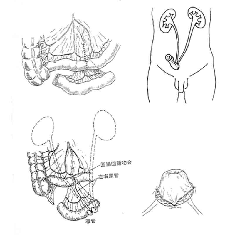回腸導管法