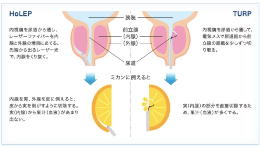 ホルミウムレーザー前立腺核出術図解1