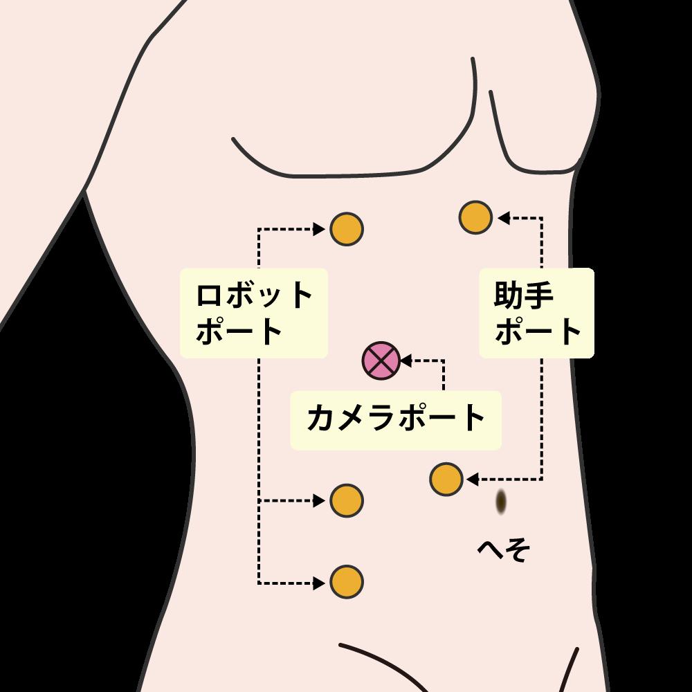 右ロボット腎部分切除術(腹腔内アプローチ)