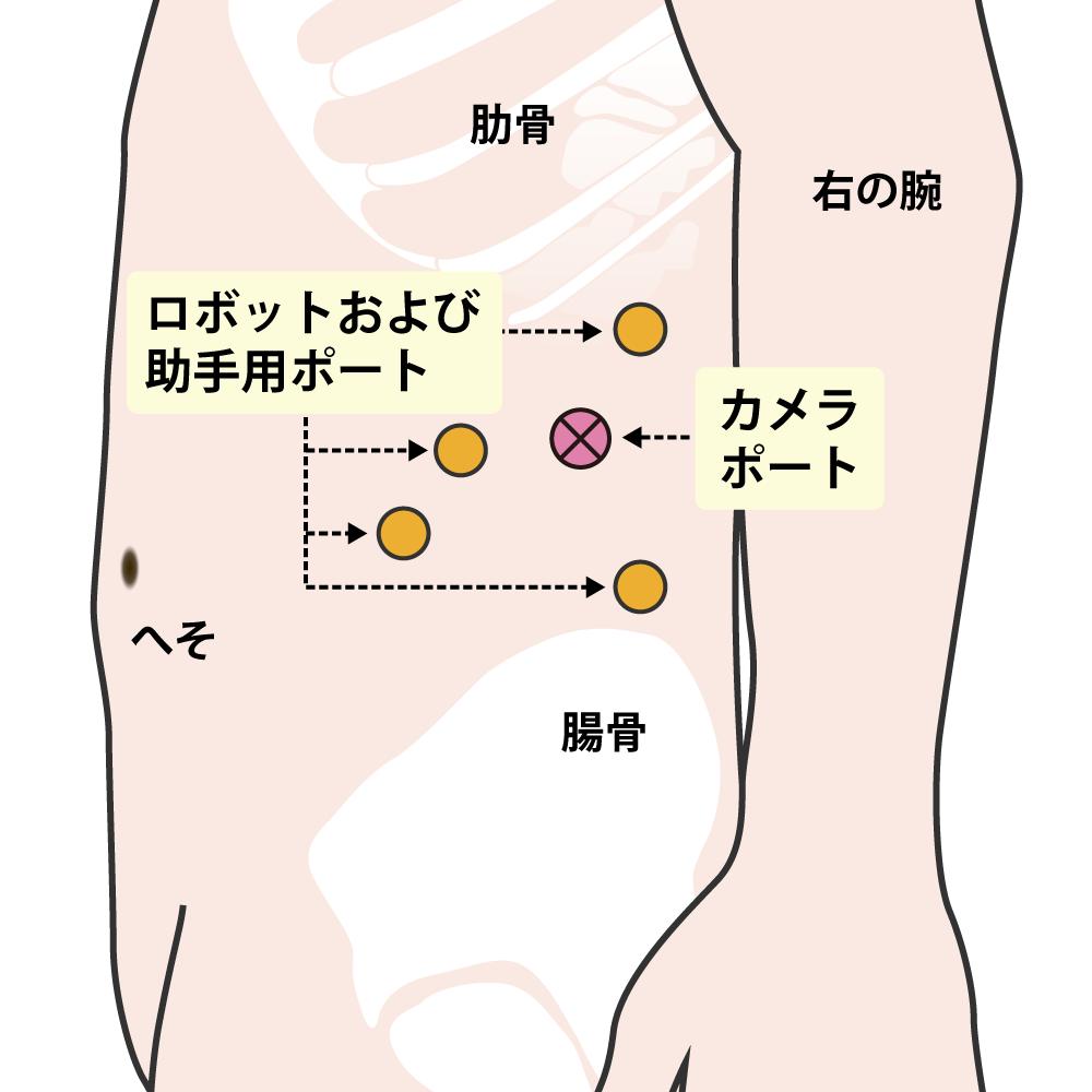 左ロボット腎部分切除術(後腹膜アプローチ)