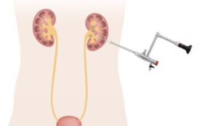 経皮的腎砕石術(PNL)の図解