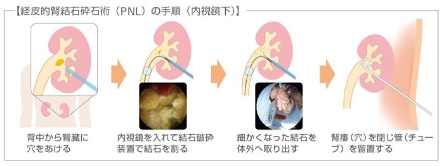 経皮的腎砕石術(PNL)の手順図解