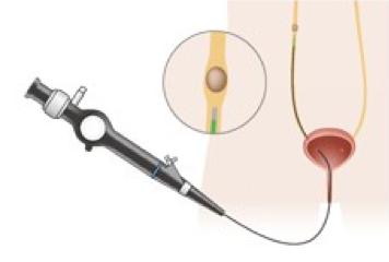 経尿道的尿路結石破砕術(TUL)の図解