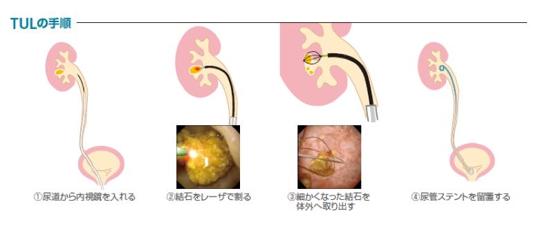 経尿道的尿路結石破砕術(TUL)の手順図解