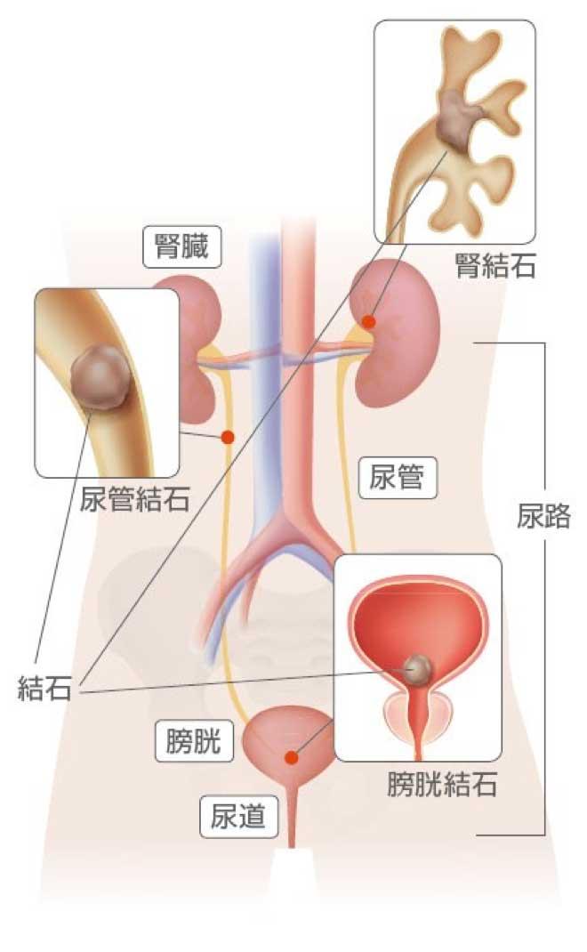 尿路結成の疾患箇所