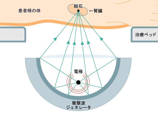 体外衝撃波結石破砕術(ESWL)の図解