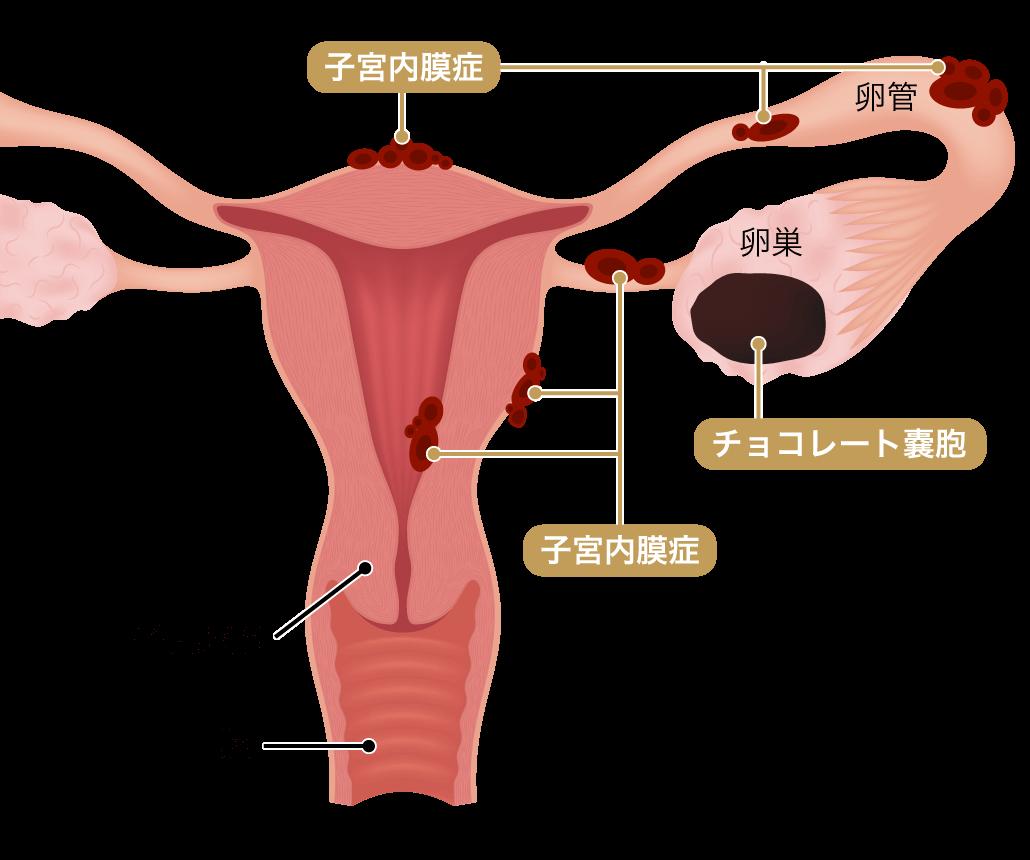 子宮内膜症のできやすい箇所