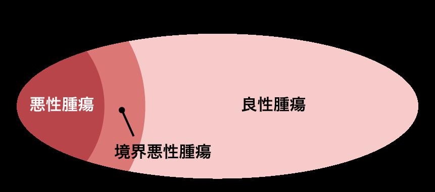 卵巣腫瘍(卵巣がん)の種類