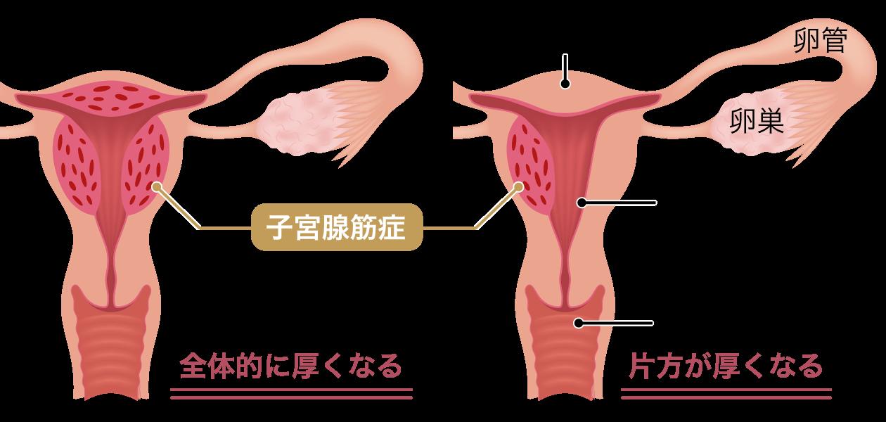 子宮腺筋症の説明