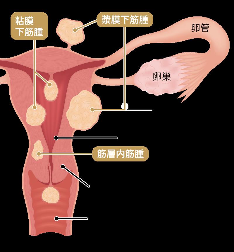 子宮筋腫の種類