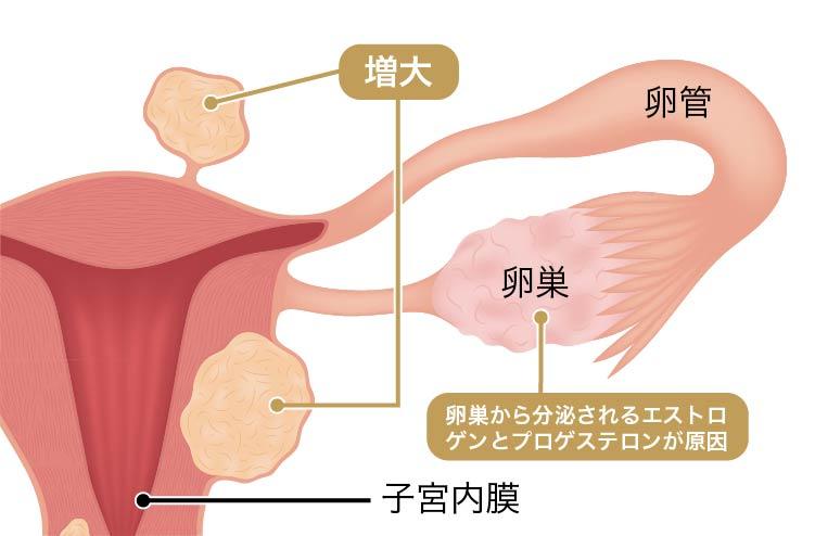 子宮筋腫の原因