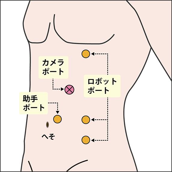 左ロボット腎部分切除術(腹腔内アプローチ)