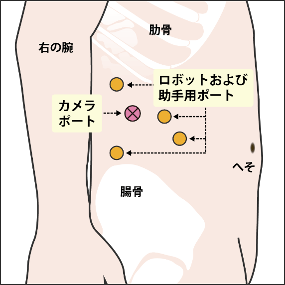 右ロボット腎部分切除術(後腹膜アプローチ)